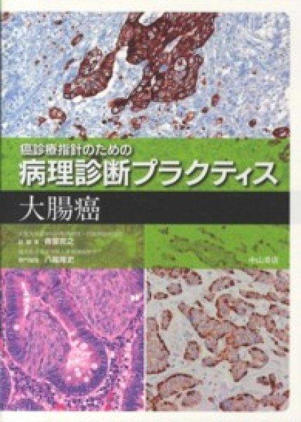 画像1: 大腸癌 (1)