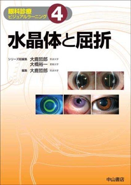 画像1: 水晶体と屈折(眼科診療ビジュアルラーニング 4) (1)
