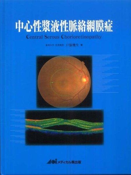 画像1: 中心性漿液性脈絡網膜症 (1)