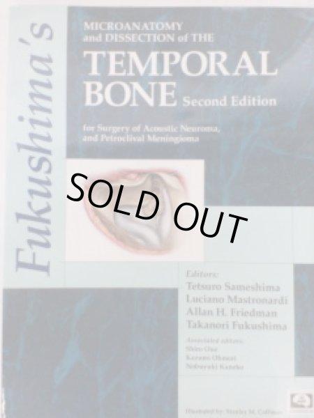 画像1: Fukushima's Microanatomy and Dissection the Temporal Bone, 2nd Edition(with DVD) (1)