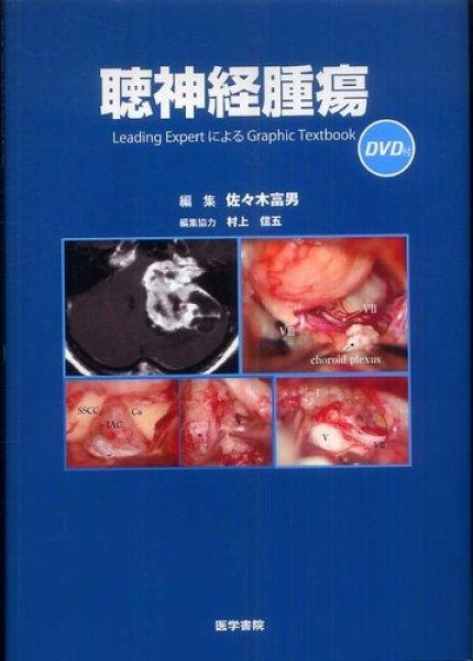 画像1: 聴神経腫瘍[DVD付] Leading Expert による Graphic Textbook (1)