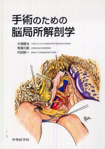 画像1: 手術のための脳局所解剖学 (1)