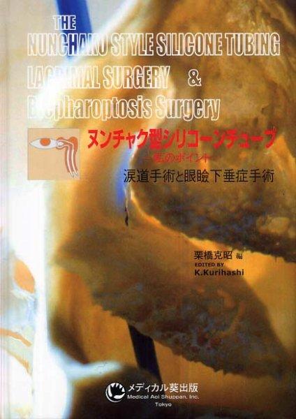 画像1: ヌンチャク型シリコンチューブ -私のポイント- 涙道手術と眼瞼下垂症手術 (1)
