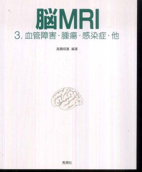 画像1: 脳MRI(3) 血管障害・腫瘍・感染症・他 (1)