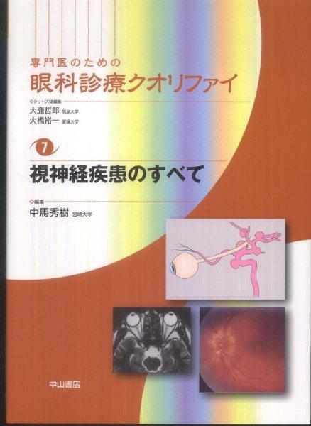 画像1: 視神経疾患のすべて [専門医のための眼科診療クオリファイ 7] (1)
